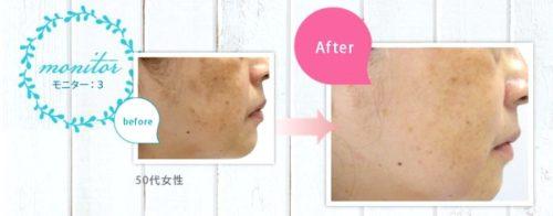 マイナスイオン電動洗顔ブラシ【ネイオンビューティ】を使用した結果