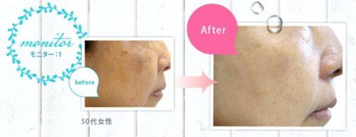 マイナスイオン電動洗顔ブラシ【ネイオンビューティ】使用後の肌の様子!